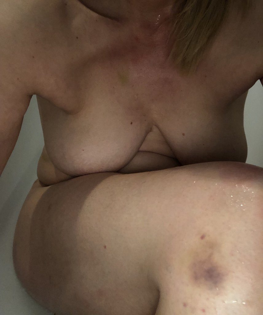 Beautiful image of guest blogger Pearl, breasts hidden, bruise on her knee