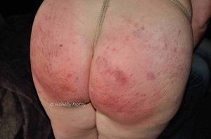An image showing the marks on my body after intense impact play, caning and spanking.