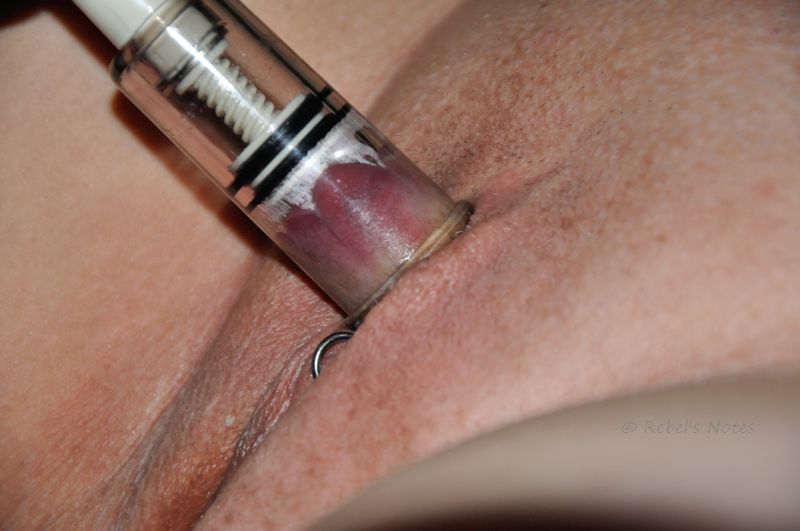 Clitoris in vacuum sucker