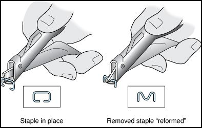 An image showing how to remove medical staples.