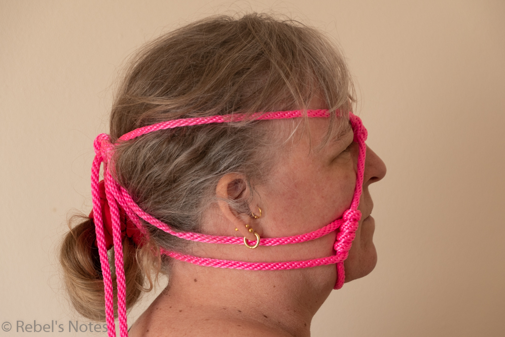An image of my head, seen from the side, with the pink rope of the head cage running along the side of my head from front to back.